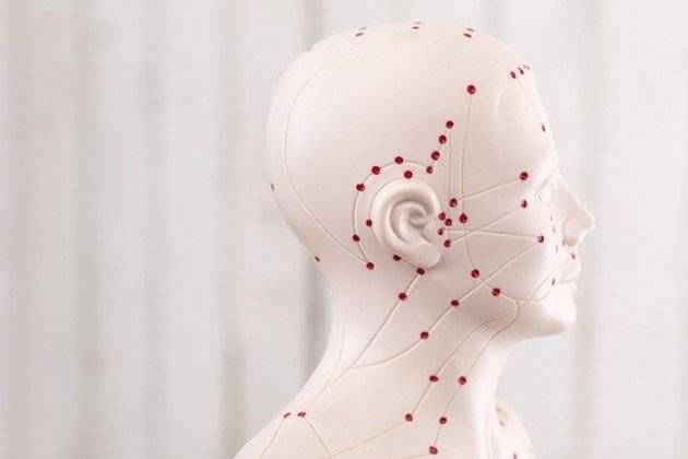 Acupuncture-Puppet